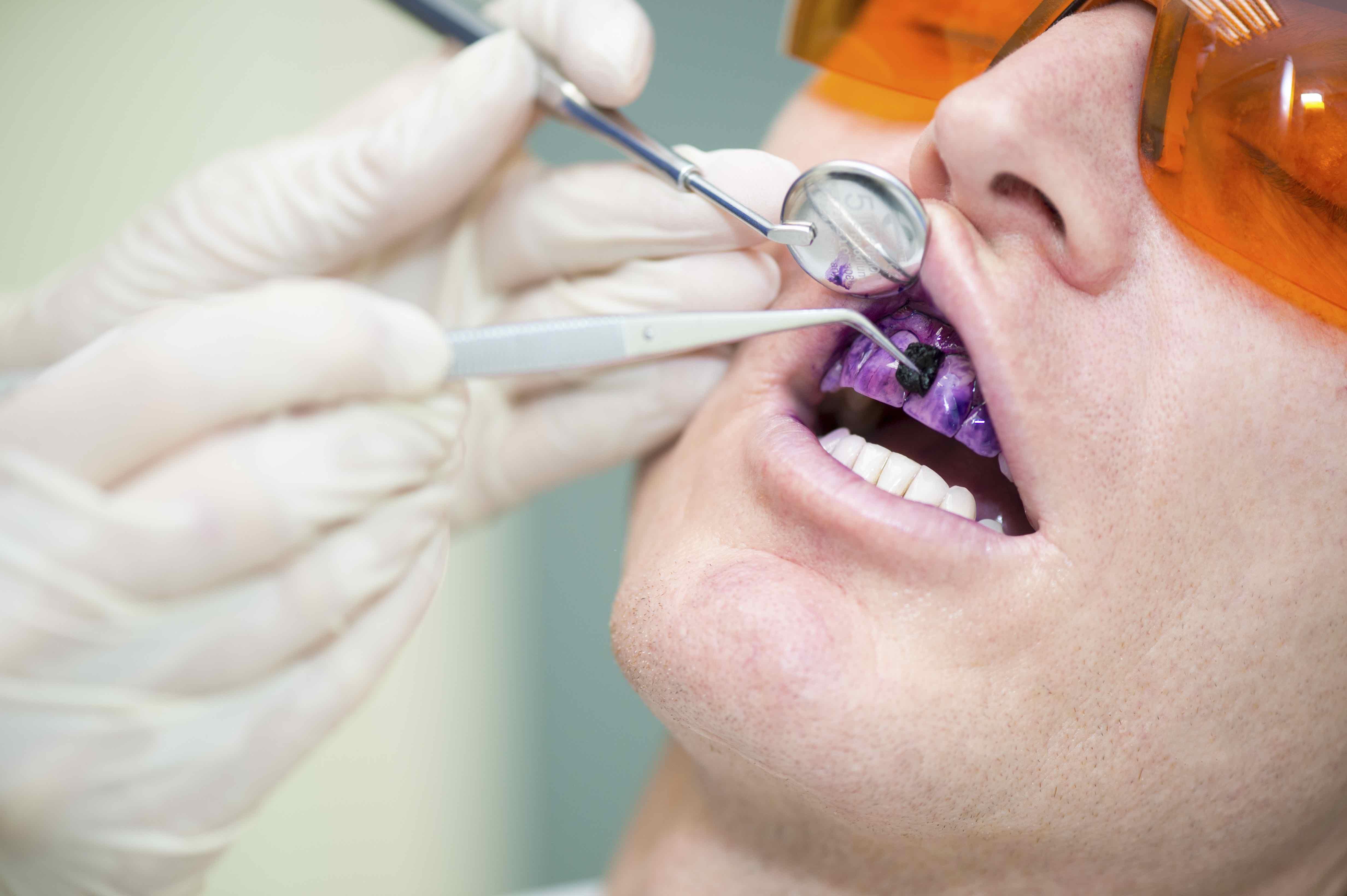 Mundhygiene Biofilm Management bei Anwendung